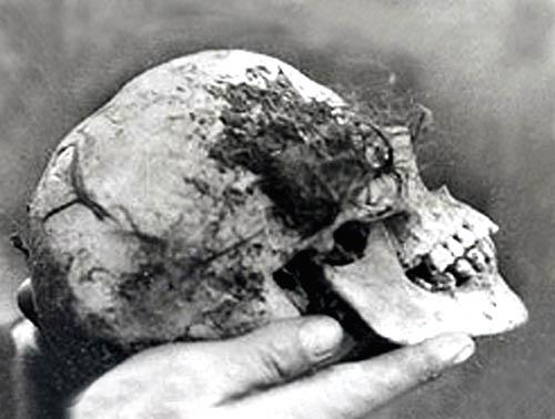 Cranio di Bella